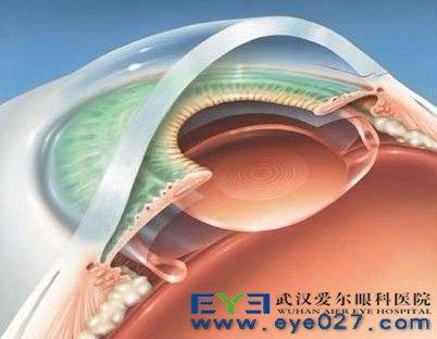 近视眼手术会失明吗_眼睛为什么会近视?近视眼手术安全吗?_准分子激光治疗近视 ...