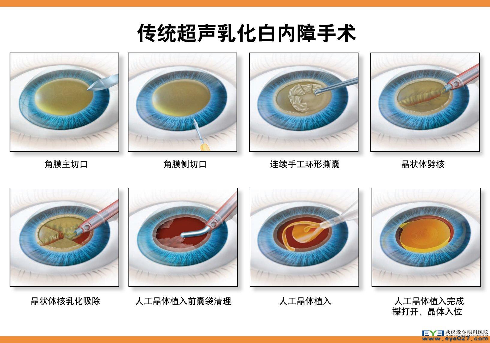 手术步骤:透明角膜切口→前囊膜连续环形撕囊→粉粹